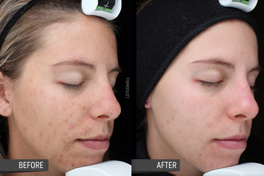 Acne, Acne Marks, Pigment and Anti-Aging